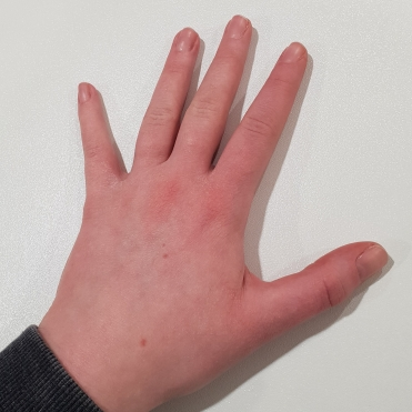 After 1 week of hand cream